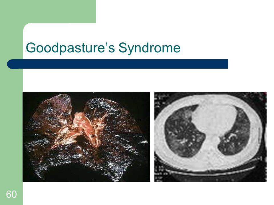 60 Goodpasture's Syndrome