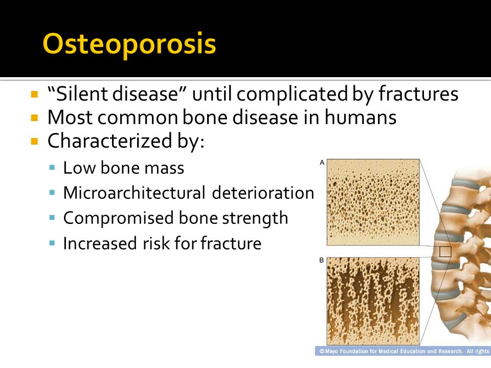  Disadvantage *Do not directly address the decreased bone formation that is characteristic of glucocorticoid-induced bone disease and have not been shown to reduce hip fractures; *Gastrointestinal side effects *Musculoskeletal discomfort * Osteonecrosis of the jaw, uveitis * Atypical femoral fractures * Bisphosphonates should be avoided in patients with creatinine clearance of ≤30 ml/min