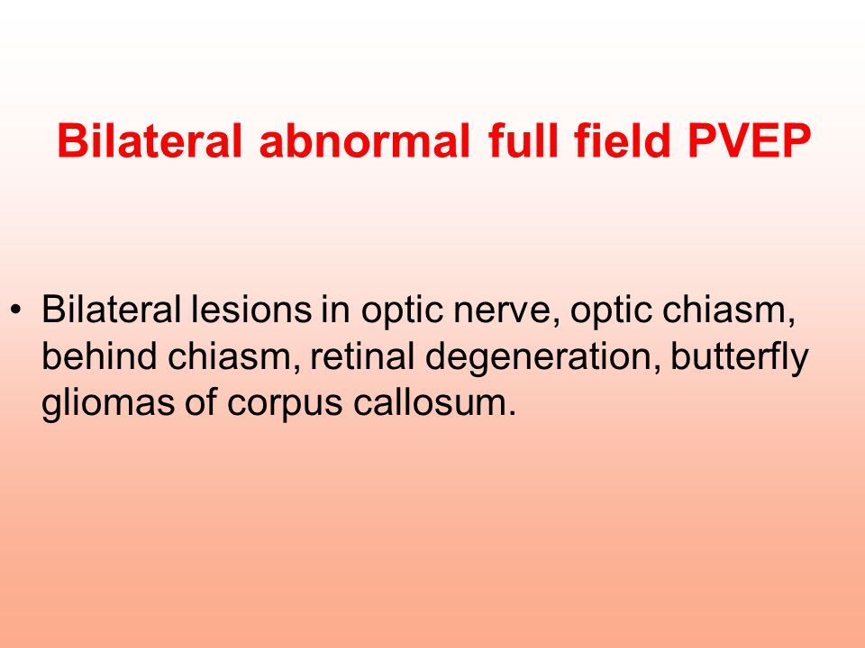 Bilateral abnormal full field PVEP Bilateral lesions in optic nerve, optic chiasm, behind chiasm, retinal degeneration, butterfly gliomas of corpus ca