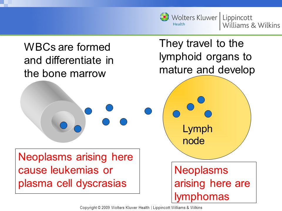 Copyright © 2009 Wolters Kluwer Health | Lippincott Williams & Wilkins WBCs are formed and differentiate in the bone marrow Neoplasms arising here cause leukemias or plasma cell dyscrasias They travel to the lymphoid organs to mature and develop Neoplasms arising here are lymphomas Lymph node