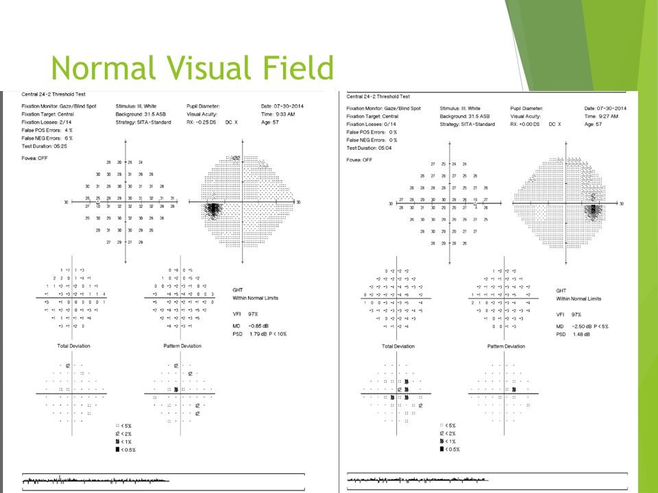 Normal Visual Field