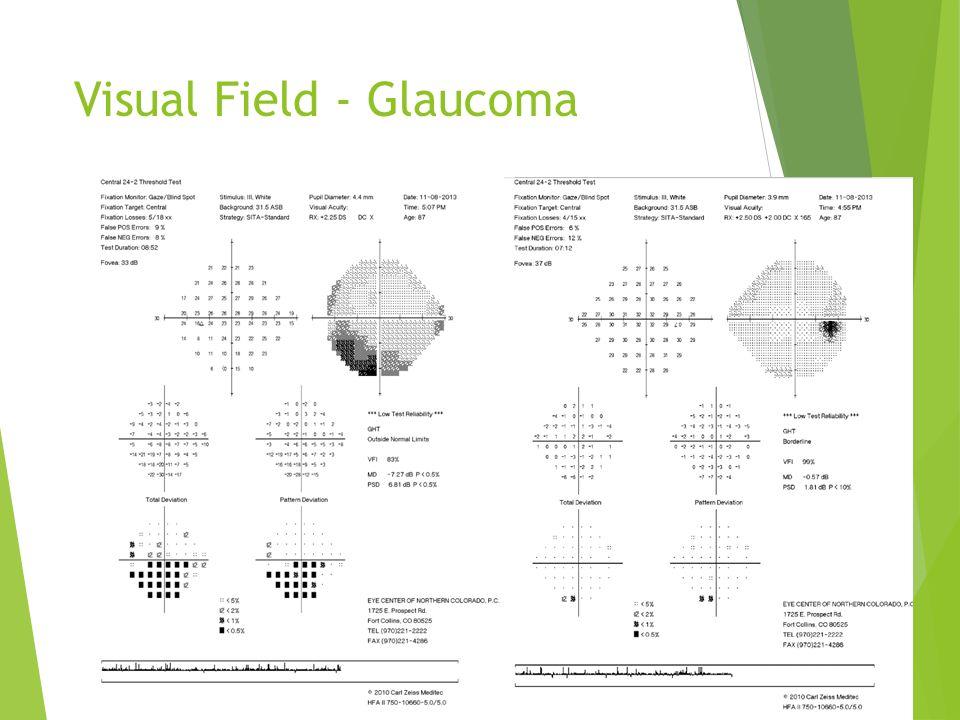 Visual Field - Glaucoma