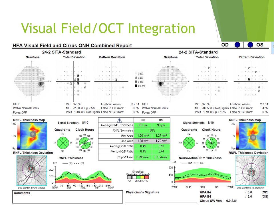 Visual Field/OCT Integration