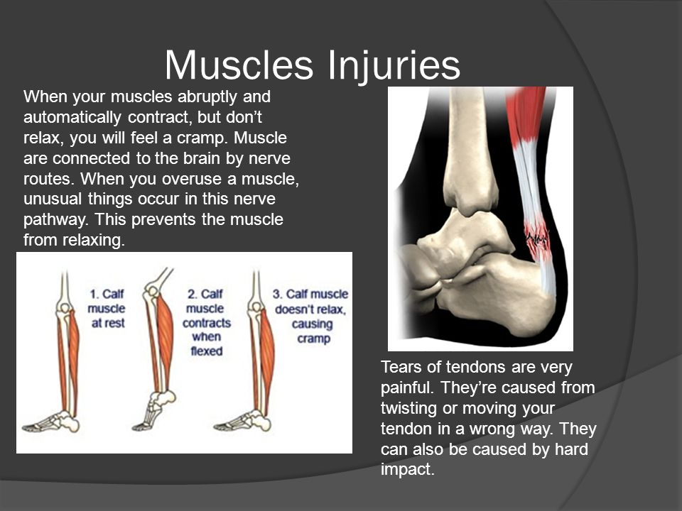 Muscles Injuries When your muscles abruptly and automatically contract, but don't relax, you will feel a cramp.