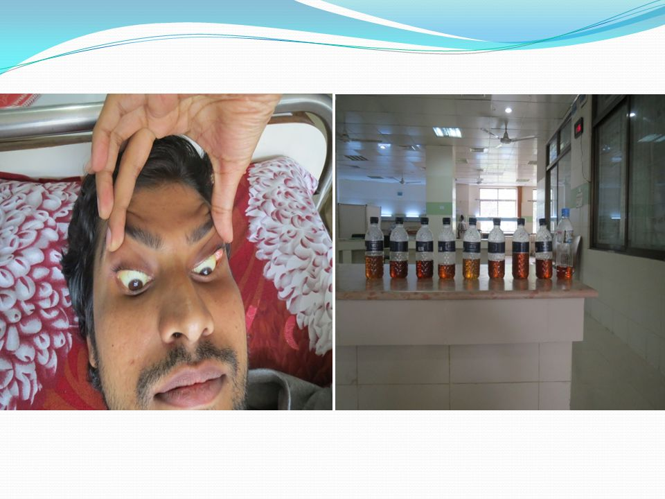 H A M N Ahasan, A A Mamun, S R Karim, M A Bakar, E A Gazi, Chandra Shekhar Bala; Paralytic Complications of Puffer Fish (Tetrodotoxin) Poisoning; Singapore Med J 2004 Vol 45(2) : 73