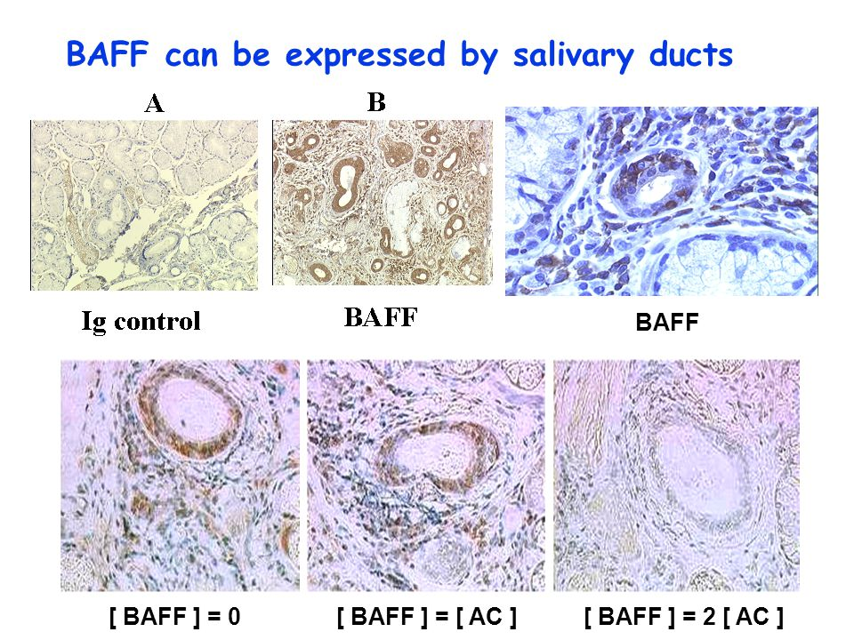 BAFF can be expressed by salivary ducts [ BAFF ] = 0[ BAFF ] = [ AC ][ BAFF ] = 2 [ AC ] BAFF