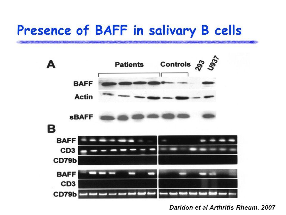 Presence of BAFF in salivary B cells Daridon et al Arthritis Rheum. 2007