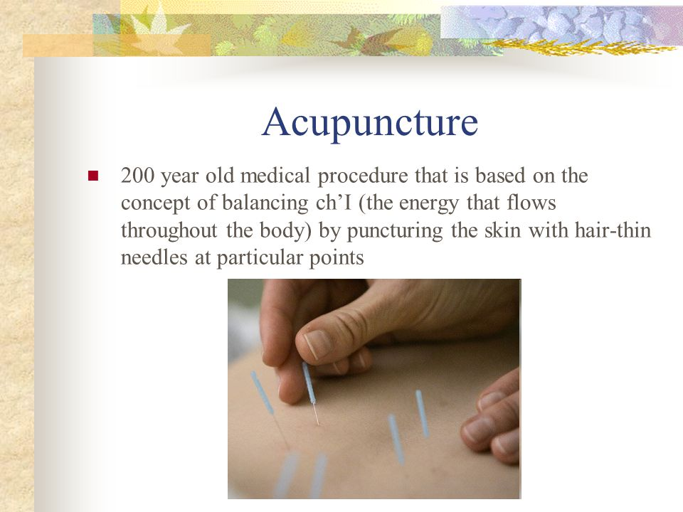 Acupuncture 200 year old medical procedure that is based on the concept of balancing ch'I (the energy that flows throughout the body) by puncturing the skin with hair-thin needles at particular points