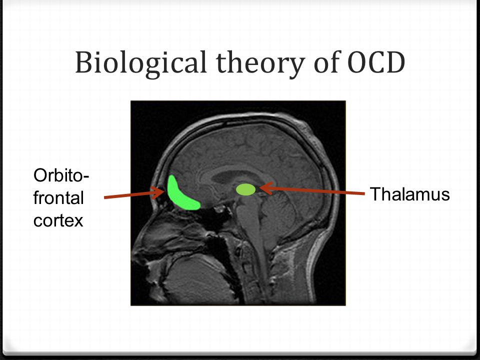 Biological theory of OCD Orbito- frontal cortex Thalamus