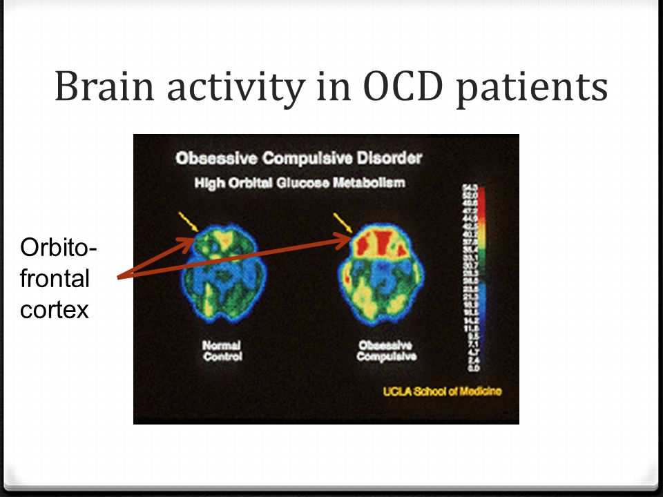 Past paper question 0 Discuss two or more biological therapies for OCD (9 + 16 marks) 0 Write a detailed plan OR have a go!