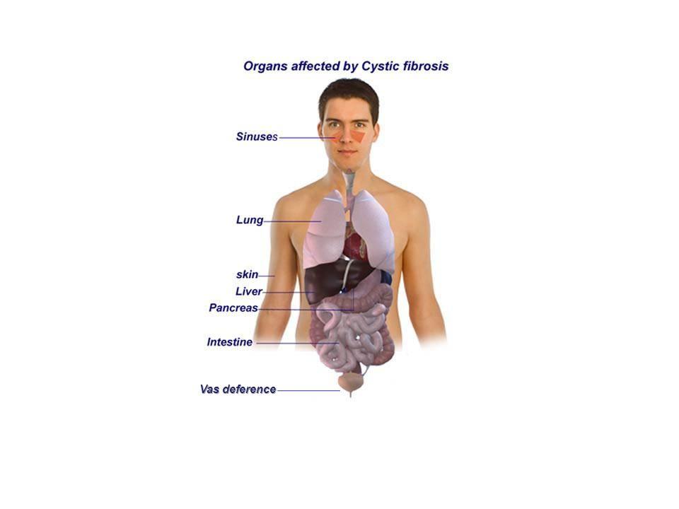 Inhaled Hypertonic (7%) Saline Elkins et al.