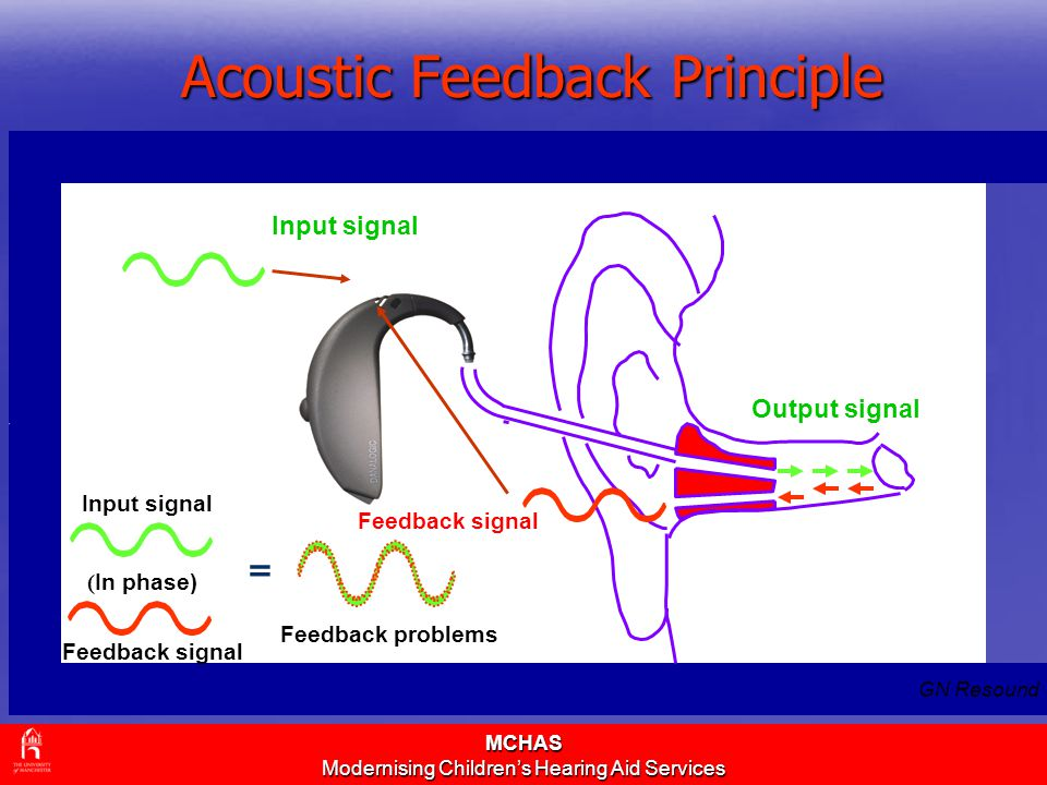 MCHAS Modernising Children's Hearing Aid Services Acoustic Feedback Principle Input signal Feedback signal Output signal ( In phase) Input signal Feedback signal Feedback problems = GN Resound
