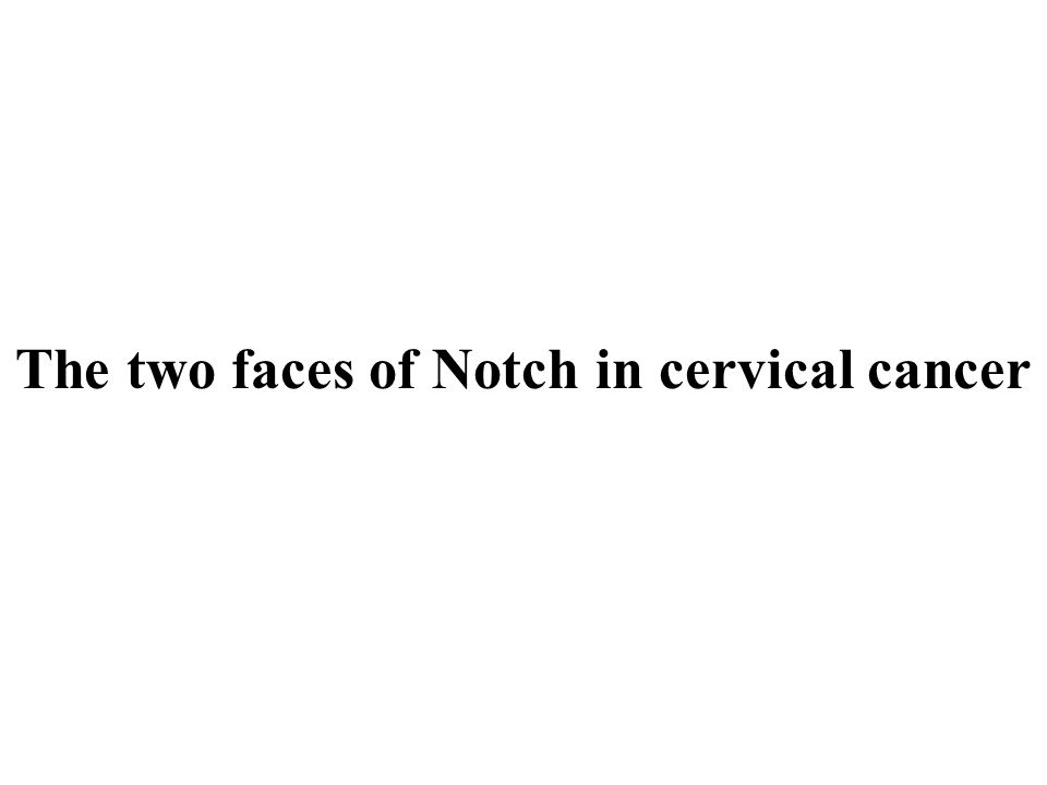 The two faces of Notch in cervical cancer