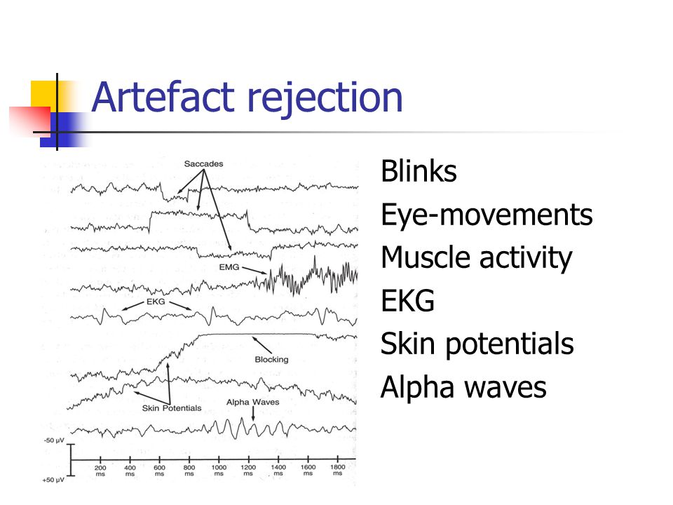 Artefact rejection Blinks Eye-movements Muscle activity EKG Skin potentials Alpha waves