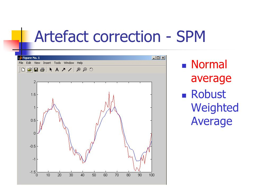 Artefact correction - SPM Normal average Robust Weighted Average