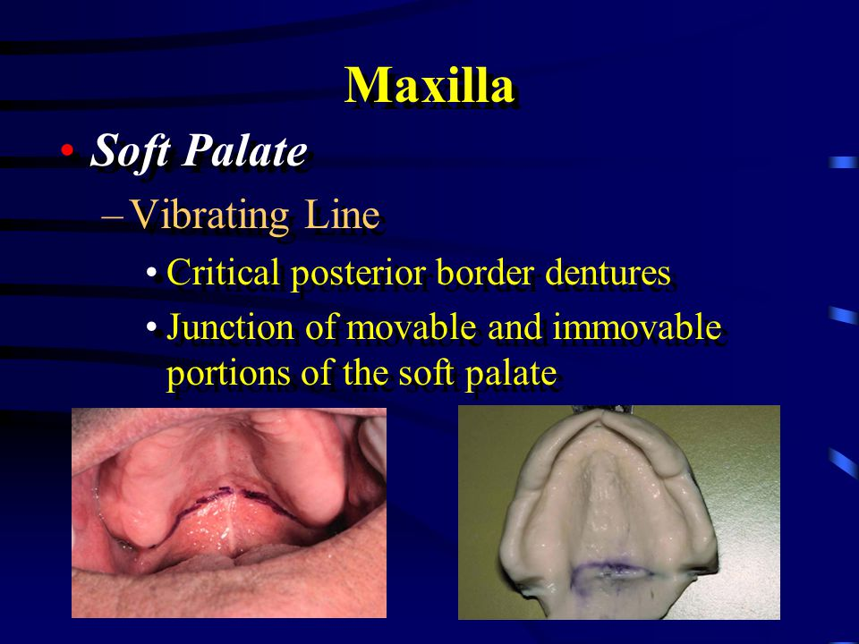 Maxilla Glandular Tissue –Soft displaceable Glandular Tissue –Soft displaceable