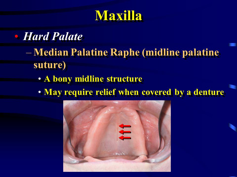 Maxilla Torus Palatinus –May require removal Torus Palatinus –May require removal