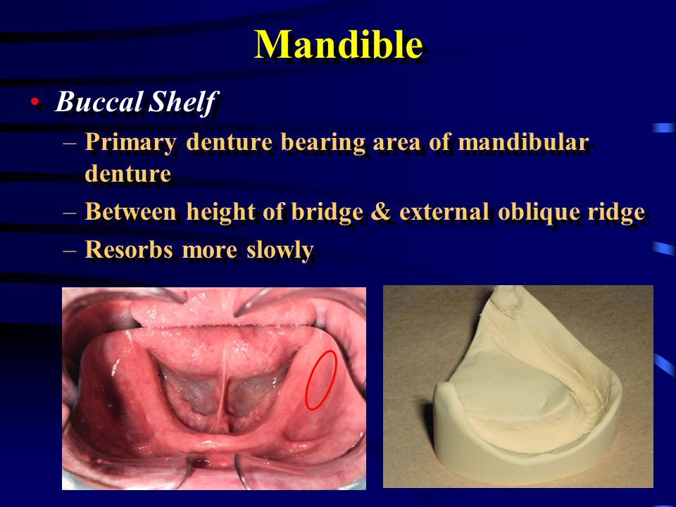 Mandible Anterior Border of the Ramus –Do not extend dentures to ramus –Discomfort will result Anterior Border of the Ramus –Do not extend dentures to ramus –Discomfort will result