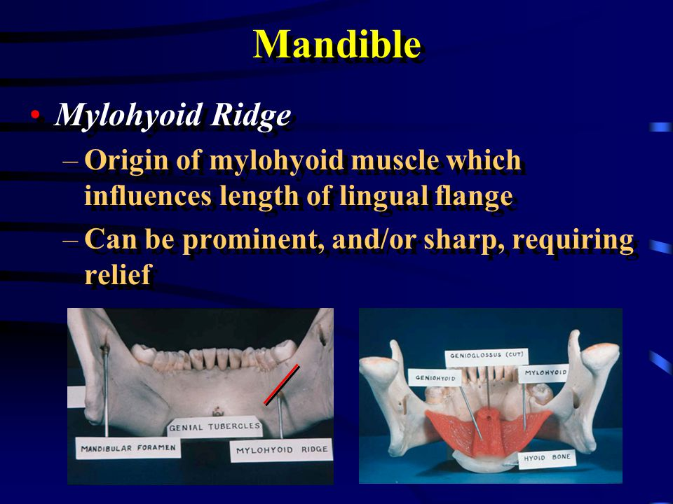 mylohyoid ridge Gallery