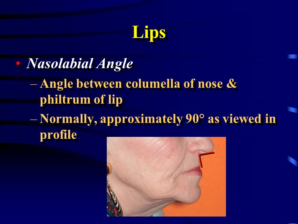 Lips Tissue of the Upper Lip –Loose tissue of the upper lip can be gathered between your thumb and index finger Tissue of the Upper Lip –Loose tissue of the upper lip can be gathered between your thumb and index finger