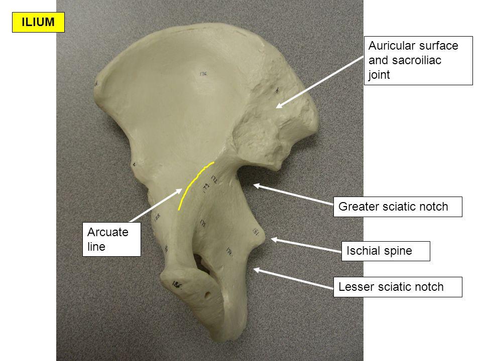 Ischial tuberosity Lesser sciatic notch Ischial spine ISCHIUM Anterior