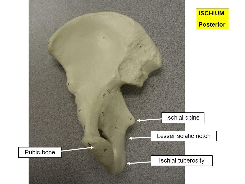 PUBIS Inferior ramus Superior ramus Pubic bone