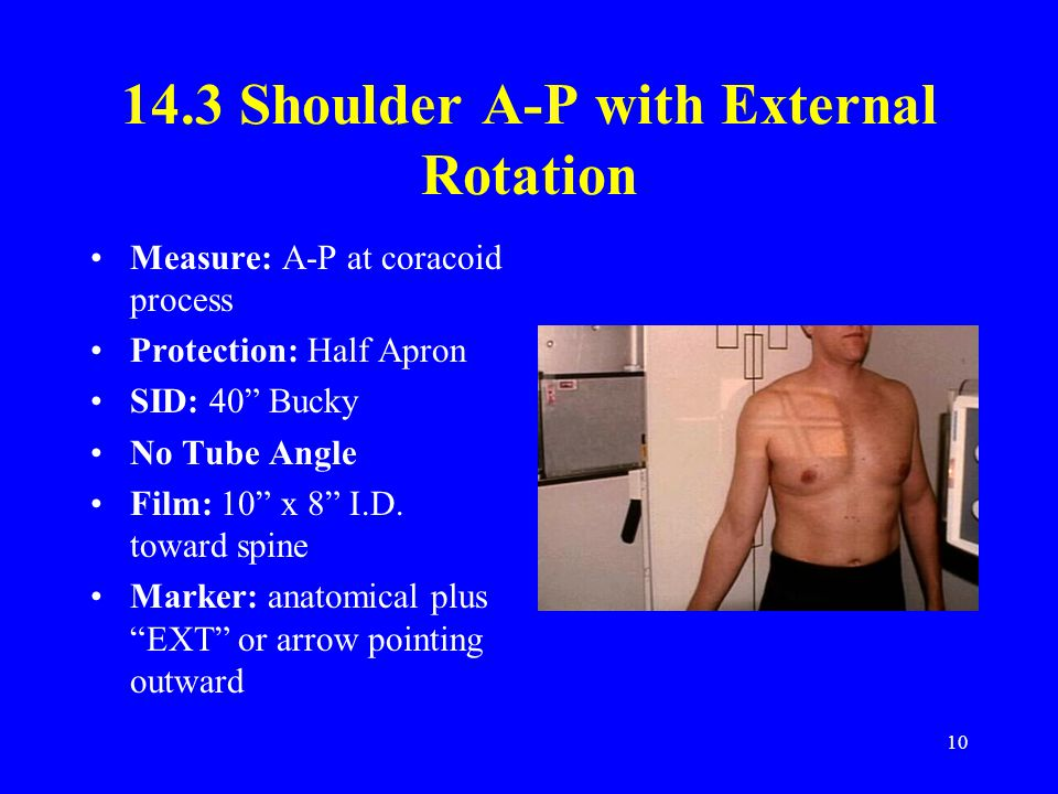 "10 14.3 Shoulder A-P with External Rotation Measure: A-P at coracoid process Protection: Half Apron SID: 40"" Bucky No Tube Angle Film: 10"" x 8"" I.D. t"