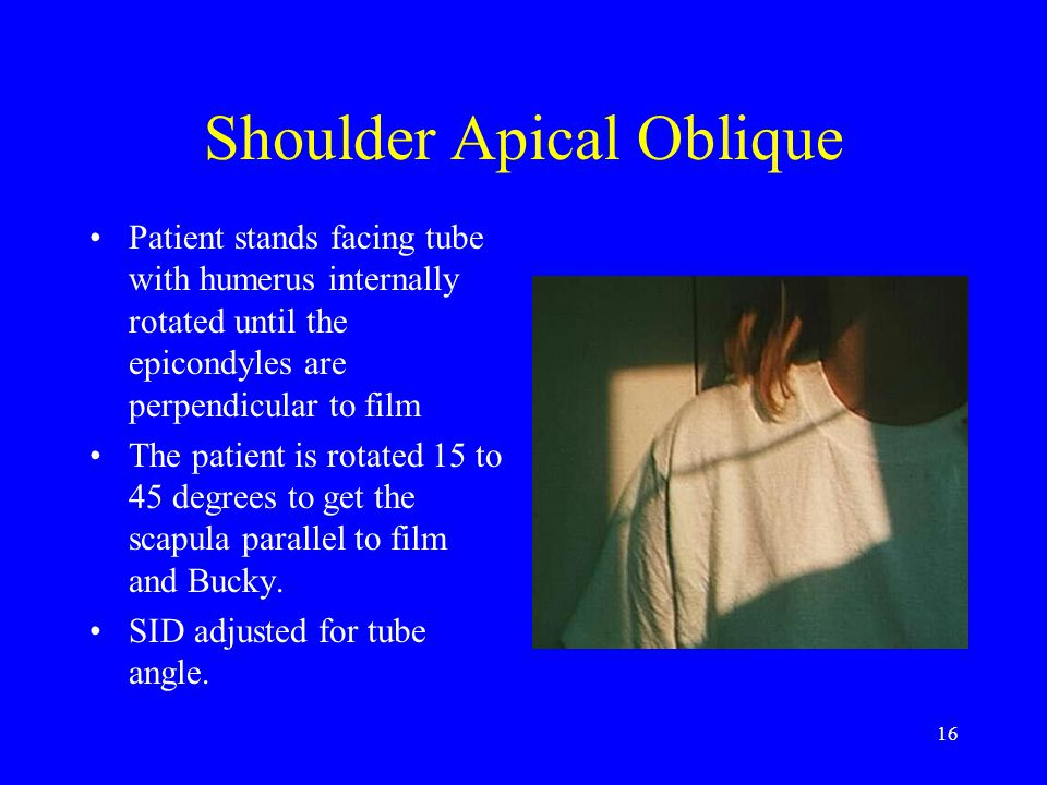 16 Shoulder Apical Oblique Patient stands facing tube with humerus internally rotated until the epicondyles are perpendicular to film The patient is r