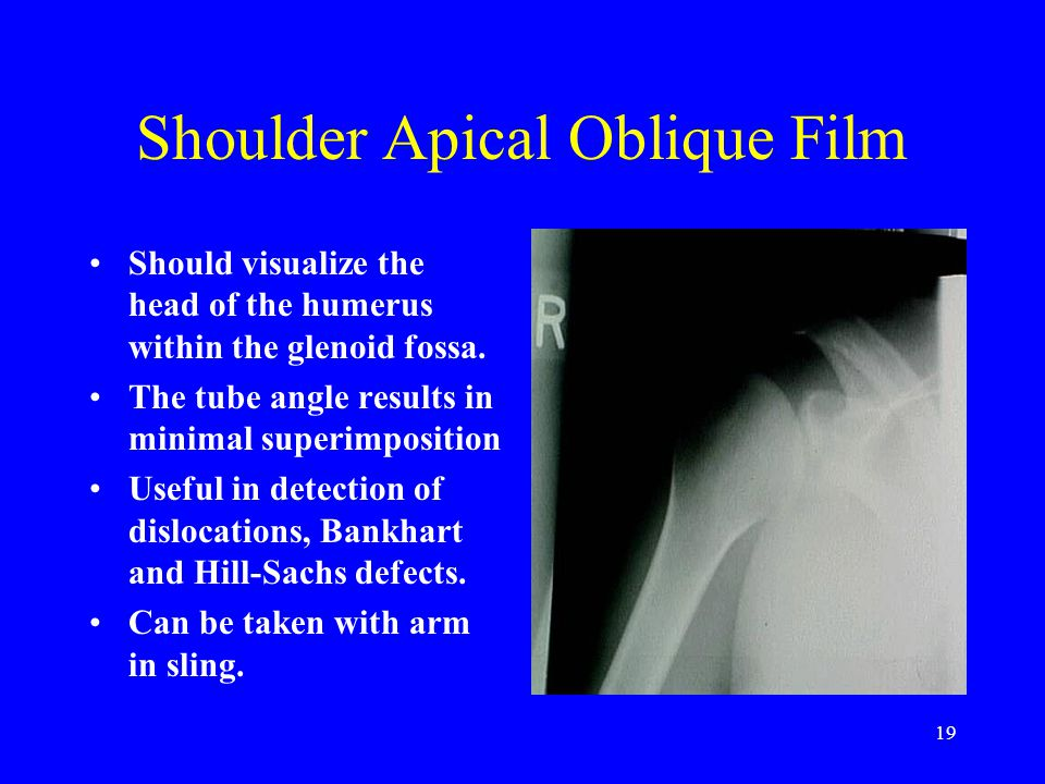 19 Shoulder Apical Oblique Film Should visualize the head of the humerus within the glenoid fossa. The tube angle results in minimal superimposition U