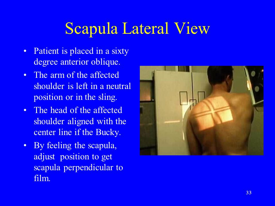 33 Scapula Lateral View Patient is placed in a sixty degree anterior oblique. The arm of the affected shoulder is left in a neutral position or in the