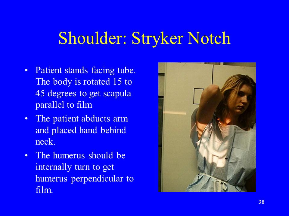 38 Shoulder: Stryker Notch Patient stands facing tube. The body is rotated 15 to 45 degrees to get scapula parallel to film The patient abducts arm an