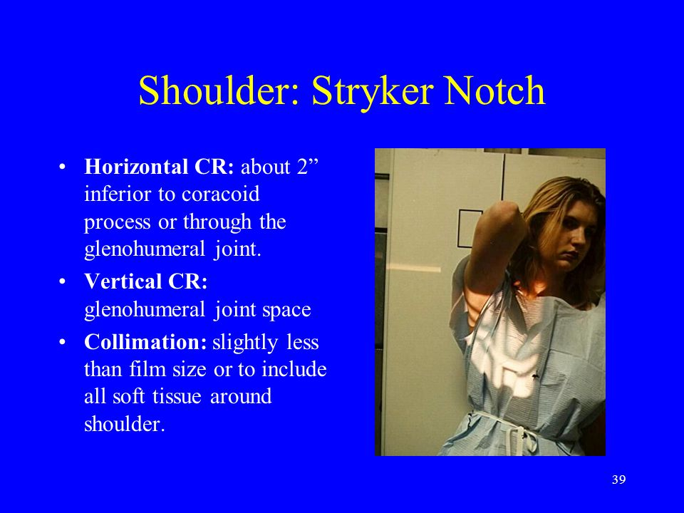 "39 Shoulder: Stryker Notch Horizontal CR: about 2"" inferior to coracoid process or through the glenohumeral joint. Vertical CR: glenohumeral joint spa"