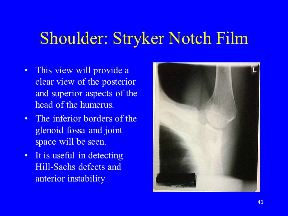 41 Shoulder: Stryker Notch Film This view will provide a clear view of the posterior and superior aspects of the head of the humerus. The inferior bor