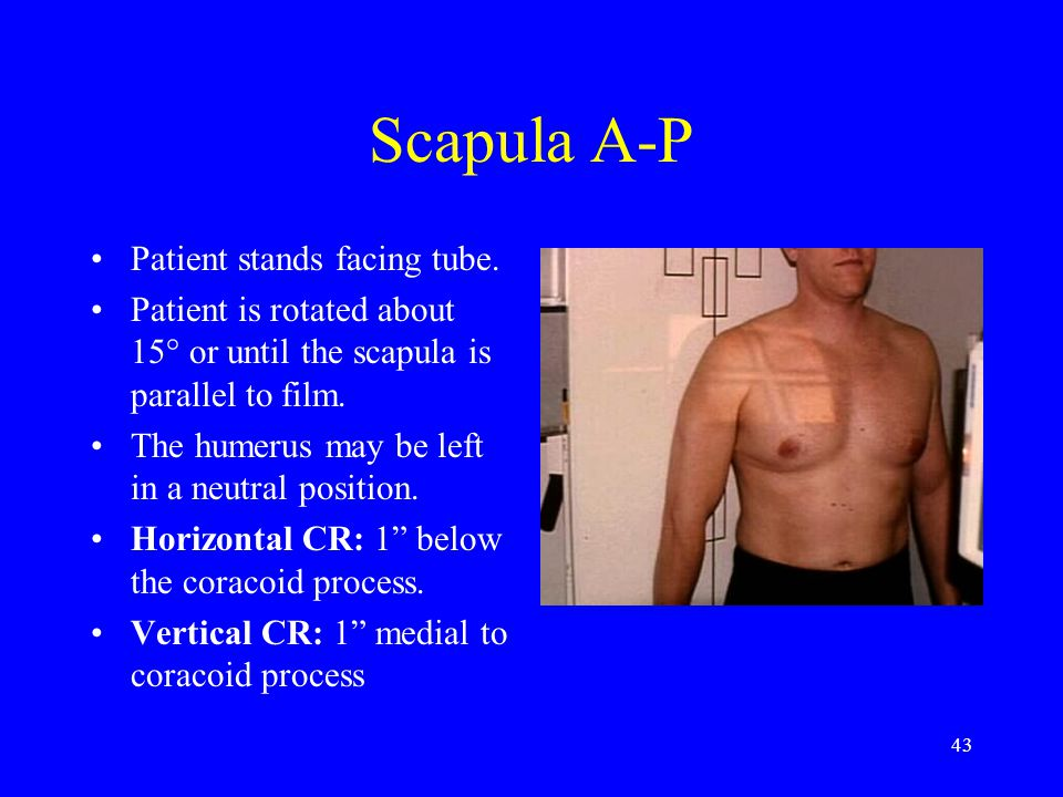 43 Scapula A-P Patient stands facing tube. Patient is rotated about 15° or until the scapula is parallel to film. The humerus may be left in a neutral
