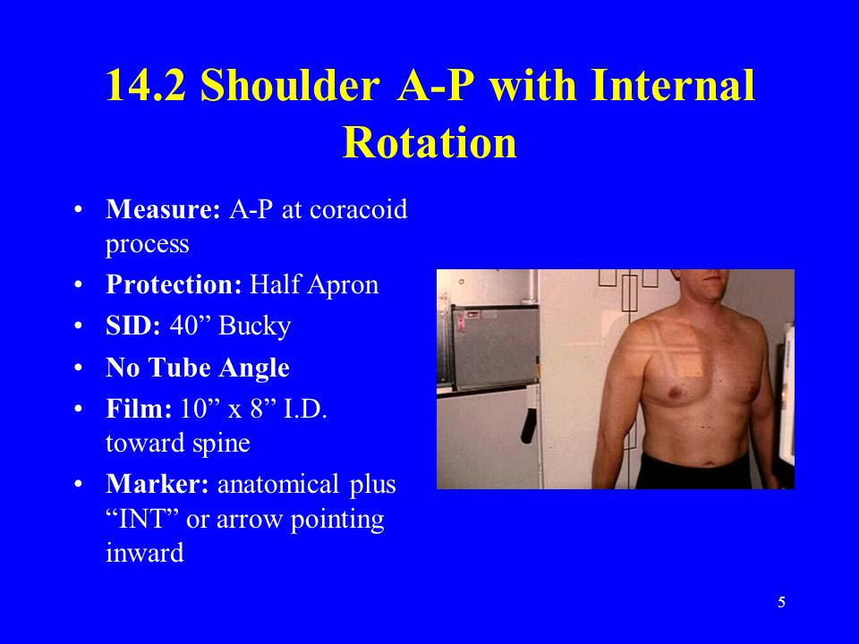 "5 14.2 Shoulder A-P with Internal Rotation Measure: A-P at coracoid process Protection: Half Apron SID: 40"" Bucky No Tube Angle Film: 10"" x 8"" I.D. to"