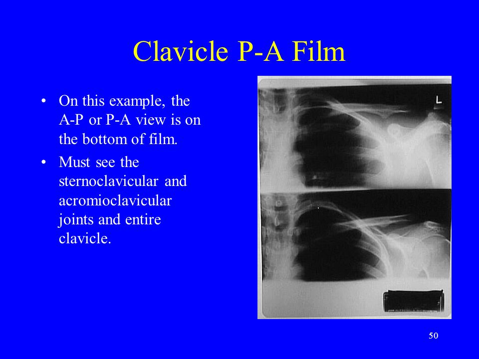 50 Clavicle P-A Film On this example, the A-P or P-A view is on the bottom of film. Must see the sternoclavicular and acromioclavicular joints and ent