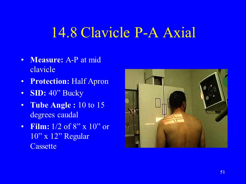 "51 14.8 Clavicle P-A Axial Measure: A-P at mid clavicle Protection: Half Apron SID: 40"" Bucky Tube Angle : 10 to 15 degrees caudal Film: 1/2 of 8"" x 1"