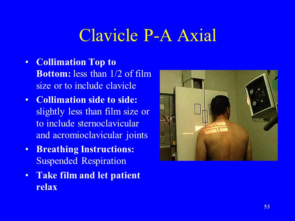 53 Clavicle P-A Axial Collimation Top to Bottom: less than 1/2 of film size or to include clavicle Collimation side to side: slightly less than film s