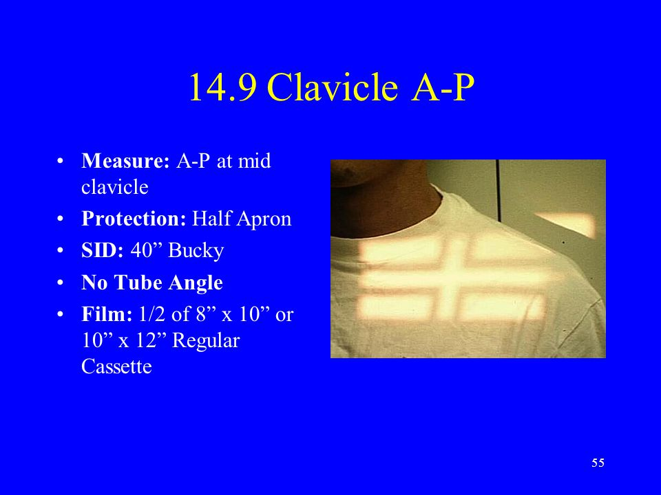 "55 14.9 Clavicle A-P Measure: A-P at mid clavicle Protection: Half Apron SID: 40"" Bucky No Tube Angle Film: 1/2 of 8"" x 10"" or 10"" x 12"" Regular Casse"
