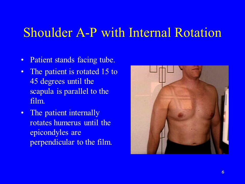 6 Shoulder A-P with Internal Rotation Patient stands facing tube. The patient is rotated 15 to 45 degrees until the scapula is parallel to the film. T