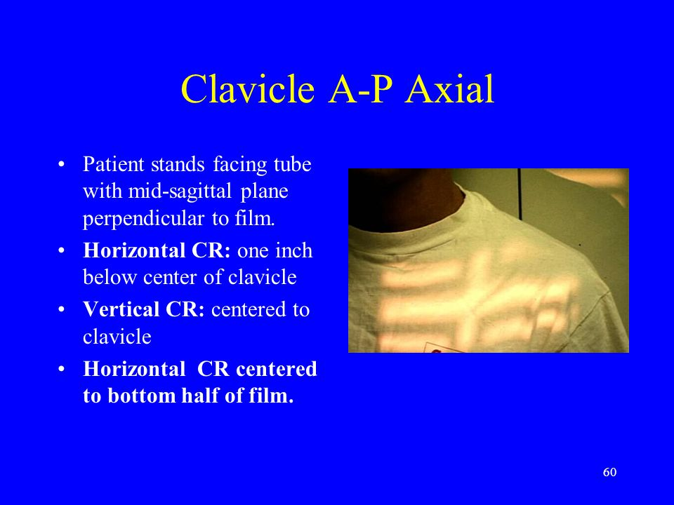 60 Clavicle A-P Axial Patient stands facing tube with mid-sagittal plane perpendicular to film. Horizontal CR: one inch below center of clavicle Verti