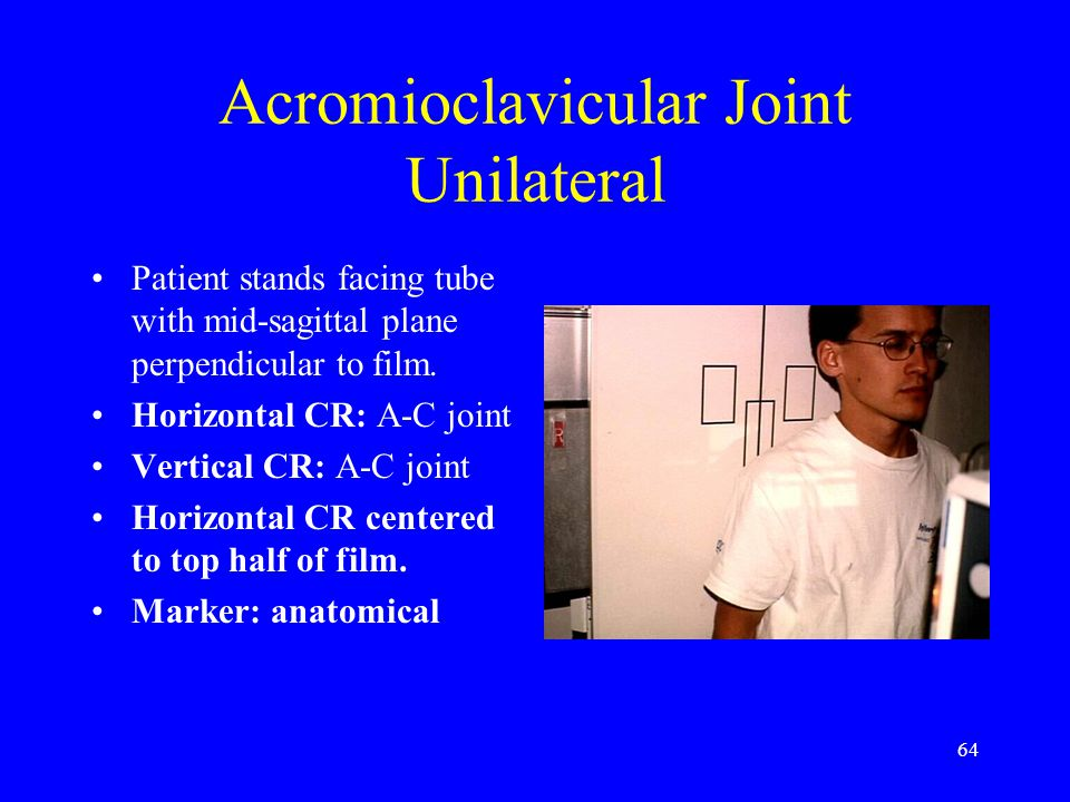 64 Acromioclavicular Joint Unilateral Patient stands facing tube with mid-sagittal plane perpendicular to film. Horizontal CR: A-C joint Vertical CR: