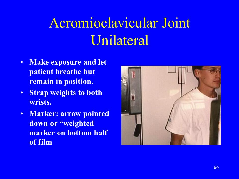 66 Acromioclavicular Joint Unilateral Make exposure and let patient breathe but remain in position. Strap weights to both wrists. Marker: arrow pointe