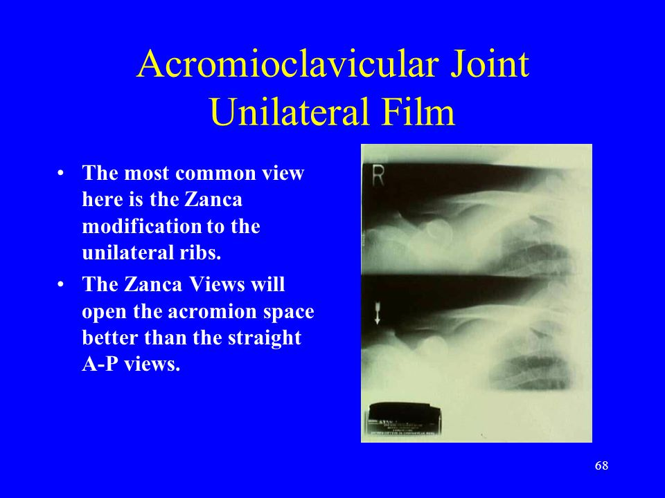 68 Acromioclavicular Joint Unilateral Film The most common view here is the Zanca modification to the unilateral ribs. The Zanca Views will open the a
