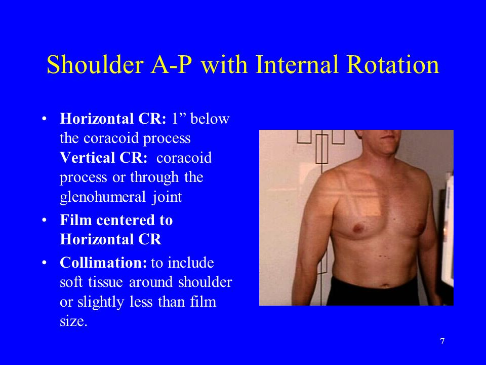 "7 Shoulder A-P with Internal Rotation Horizontal CR: 1"" below the coracoid process Vertical CR: coracoid process or through the glenohumeral joint Fil"