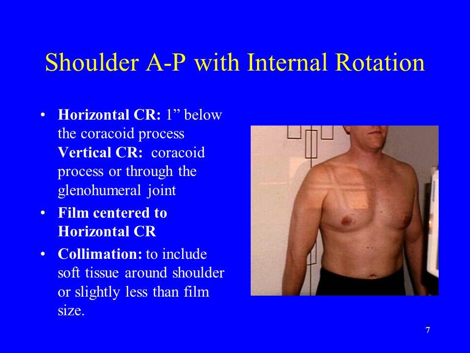 38 Shoulder: Stryker Notch Patient stands facing tube.