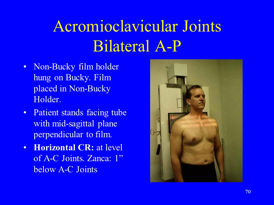 70 Acromioclavicular Joints Bilateral A-P Non-Bucky film holder hung on Bucky. Film placed in Non-Bucky Holder. Patient stands facing tube with mid-sa
