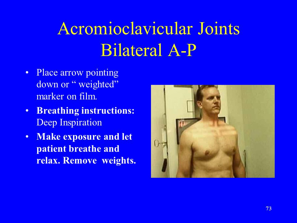 "73 Acromioclavicular Joints Bilateral A-P Place arrow pointing down or "" weighted"" marker on film. Breathing instructions: Deep Inspiration Make expos"