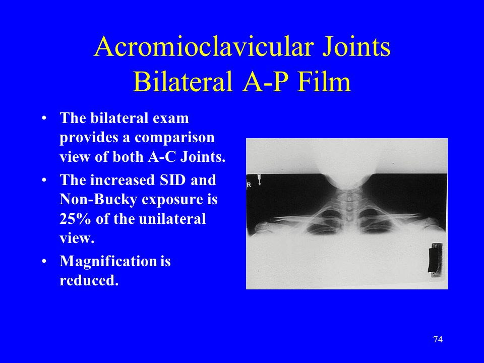 74 Acromioclavicular Joints Bilateral A-P Film The bilateral exam provides a comparison view of both A-C Joints. The increased SID and Non-Bucky expos