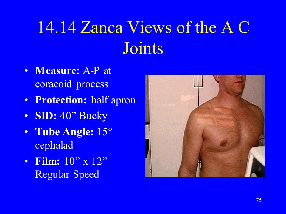 "75 14.14 Zanca Views of the A C Joints Measure: A-P at coracoid process Protection: half apron SID: 40"" Bucky Tube Angle: 15° cephalad Film: 10"" x 12"""